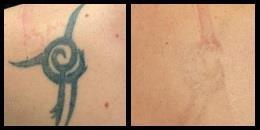 удаление тату лазером до и после - Тату студия - TattooMoscow