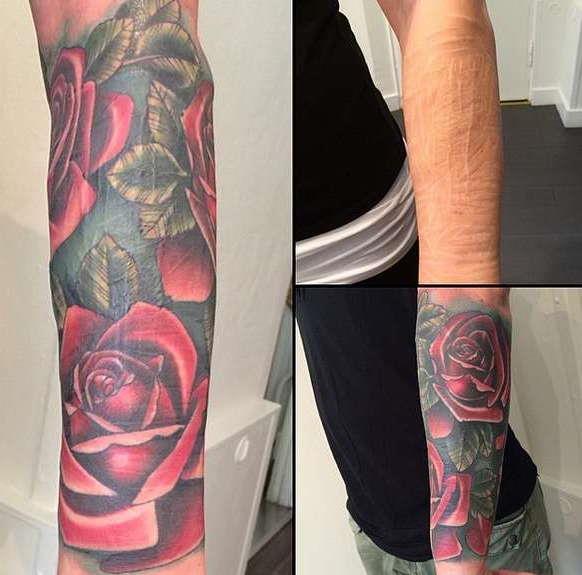 Татуировки на шрамах руки