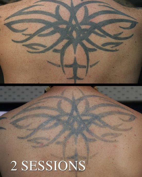 удаление татуировки методом селективного фототермолиза