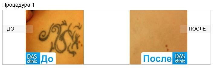 фото удаления татуировки до и после