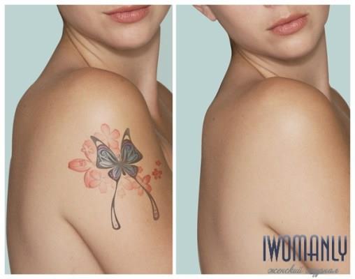 Как удалить татуировку в домашних условиях