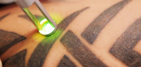 удаление татуировок лазером любого цвета
