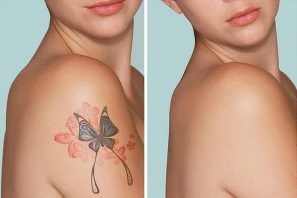удаление татуировок и татуажа лазером