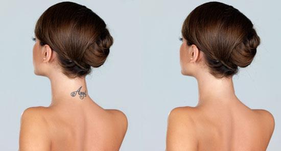 удаление татуировки - до и после